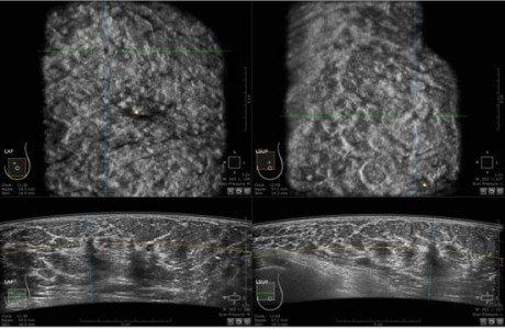Στεφανιαίες τομές ABUS. Απεικονίζεται μια ύποπτη αλλοίωση μεγέθους 6χιλ.